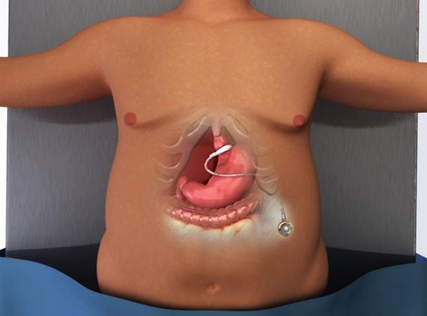 Операция по уменьшению желудка