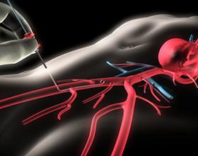 Сколько стоит коронарография сосудов сердца