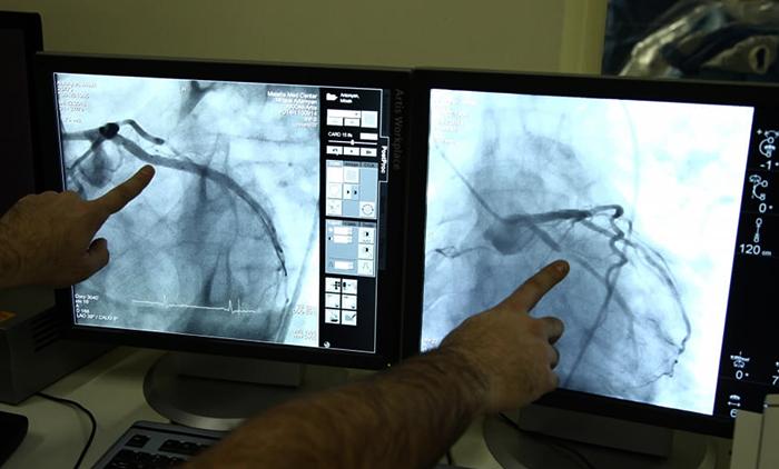 Коронарография и врачи