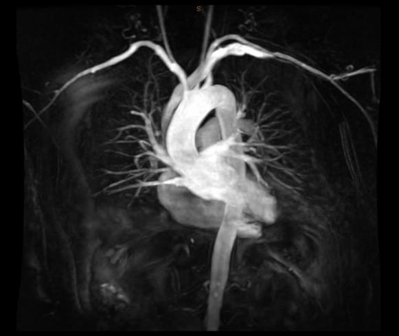 МРТ сердца и сосудов