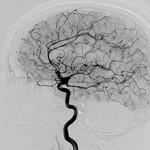 Сколько стоит ангиография сосудов головного мозга