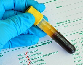 Сколько в среднем стоит анализ на мочевую кислоту