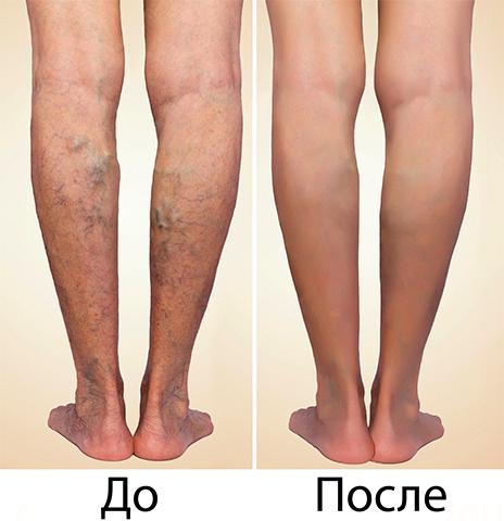 До и после удаление варикоза лазером