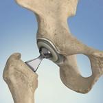 Сколько стоит эндопротезирование тазобедренного сустава