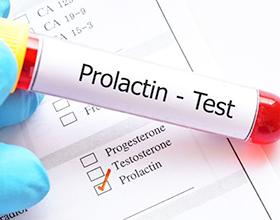 Сколько стоит анализ на пролактин — средние цены