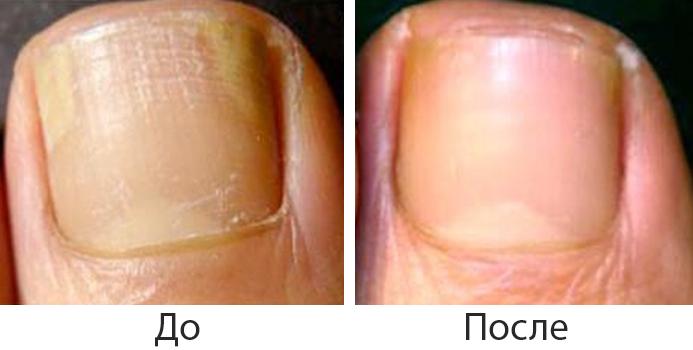До и после лечения грибка лазером
