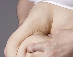 Сколько стоит удаление лишней кожи после похудения?
