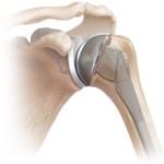 Сколько стоит эндопротезирование плечевого сустава?