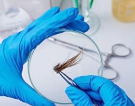 Анализ волос на микроэлементы — сколько стоит?