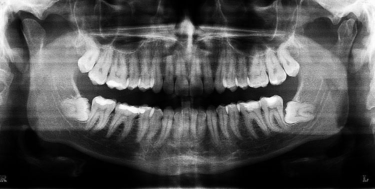 Панорамный снимок зубов (ОТПГ)