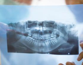 Сколько стоит панорамный снимок зубов (ОТПГ)?