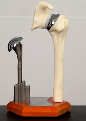 Протез плеча